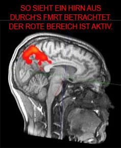 Dies ist NICHT ein Scan aus der Studie, sondern nur zur Veranschaulichung, wie ein fMRT Scan aussieht.